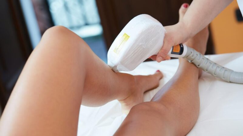 How to treat Skin after Laser Hair Removal